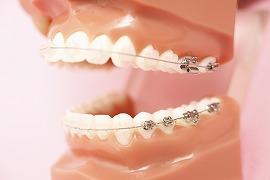 矯正歯科に対する当院の考え方